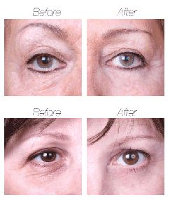 Mirakel Eye Lift - серум за корекция на зоната под очите